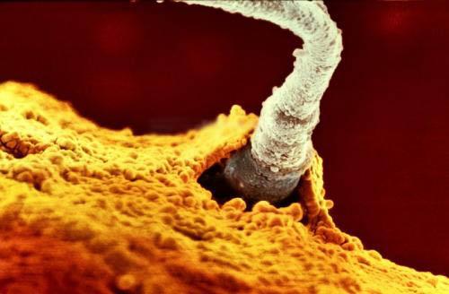 Сперматазоид и яйцеклетка