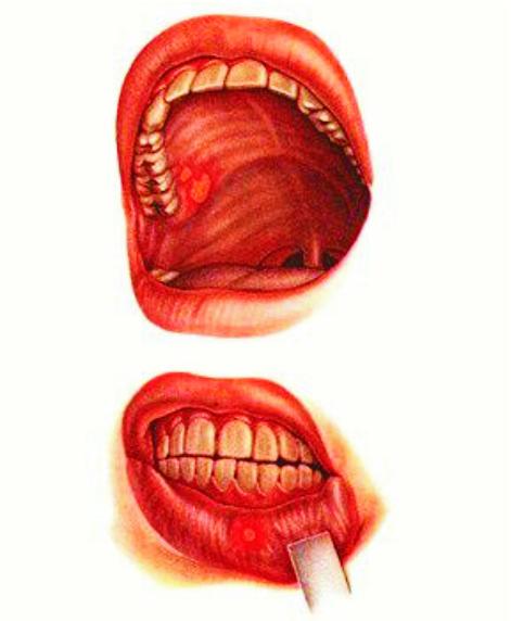 Как лечить стоматит во рту в домашних