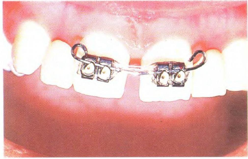 Убрать щель между зубами в домашних условиях 458
