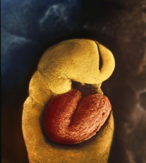 Эмбрион 24 дня