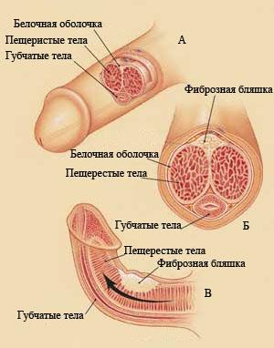 Болзни пениса