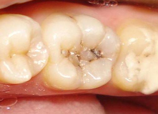 Ранний детский кариес, лечение кариеса молочных зубов