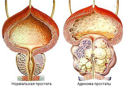 Аденома простаты - лечение, симптомы аденомы предстательной железы