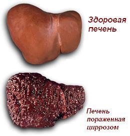 Вирус гепатита с передается через кровь