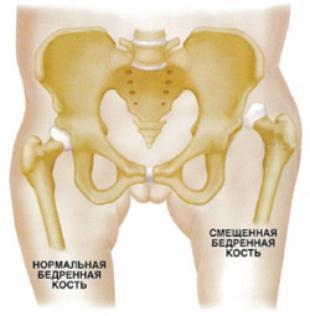 Дискразия тазобедреных суставов какое питание после опрерации.тазобедренного сустава
