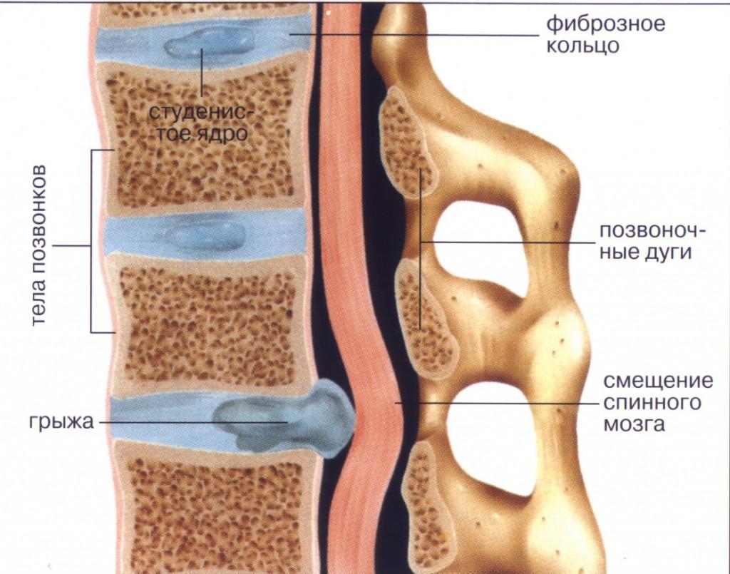 Грыжи межпозвонковых дисков грудного отдела позвоночника лечение