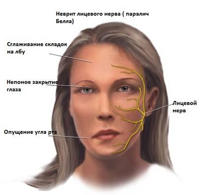 Невропатия и нейропатия в чем отличие
