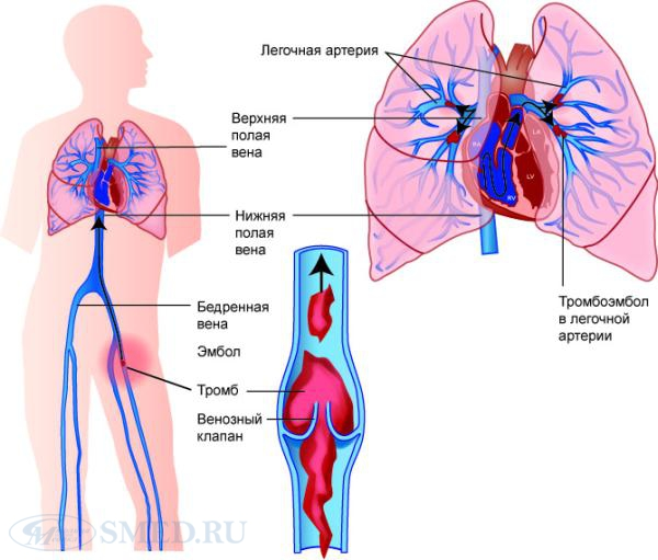 ТЭЛА – тромбоэмболия легочной артерии