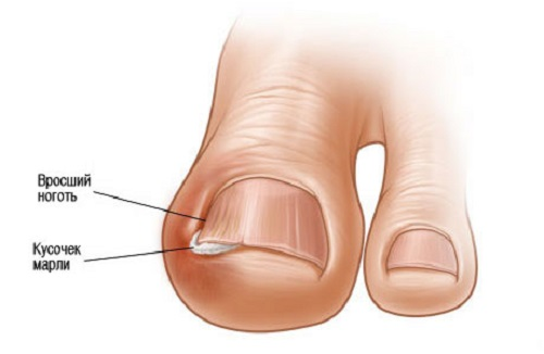 Масло от грибка ногтей стоп